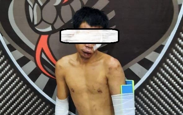 Begal Mat Kecer Ditembak Tim Reaksi Cepat Anti Bandit Polres Lumajang