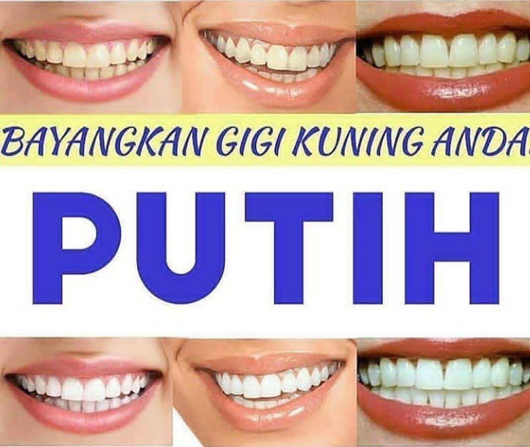 Tips Cara Mudah dan Alami untuk Memutihkan Gigi
