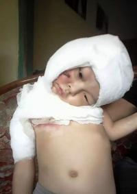 Jassen, Bocah Yang Tercebur ke Penggorengan Masih Punya Hutang di RSI Lumajang