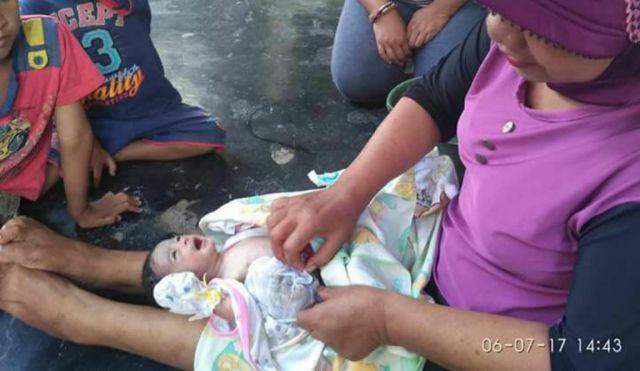 Heboh Bayi di Sukosari-Jatiroto Lahir Dengan Usus Keluar