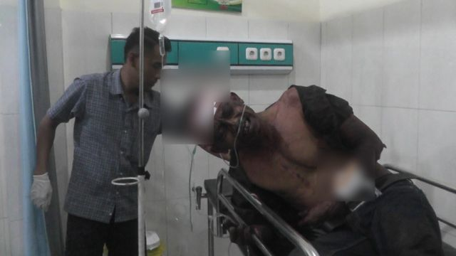 2 Lelaki Terluka Parah Setelah Terlibat Carok di Lempeni