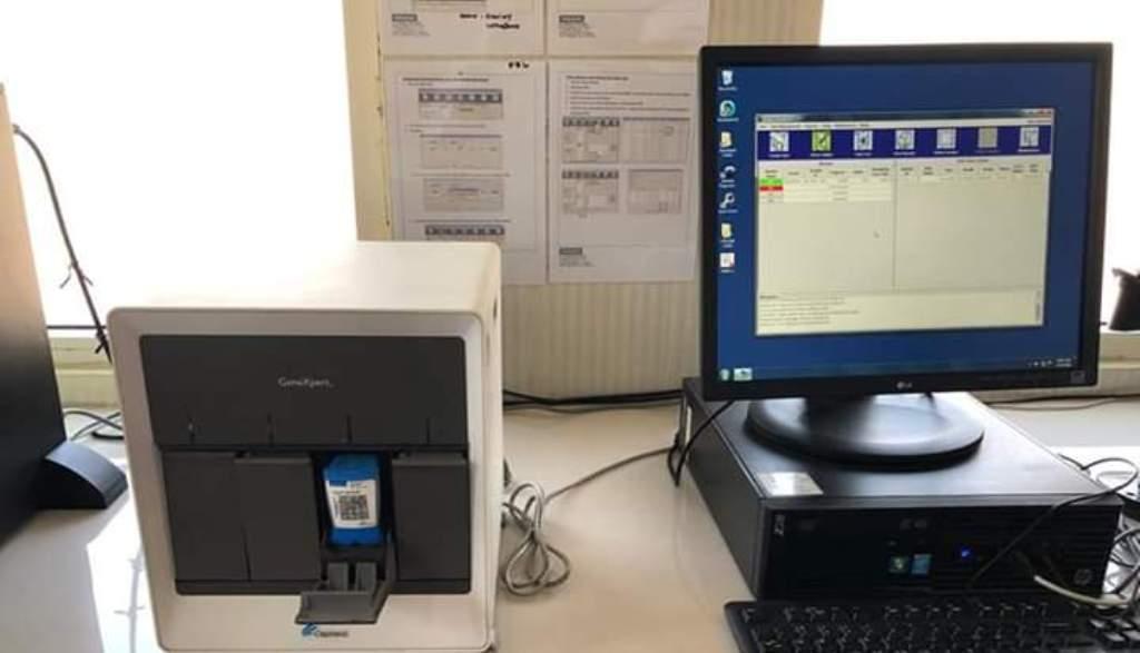 Lumajang Miliki Alat TCM Indentifikasi Positif dan Sembuh Covid 19
